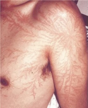 https://twistedsifter.com/2012/03/lichtenberg-figures-lightning-strike-scars/