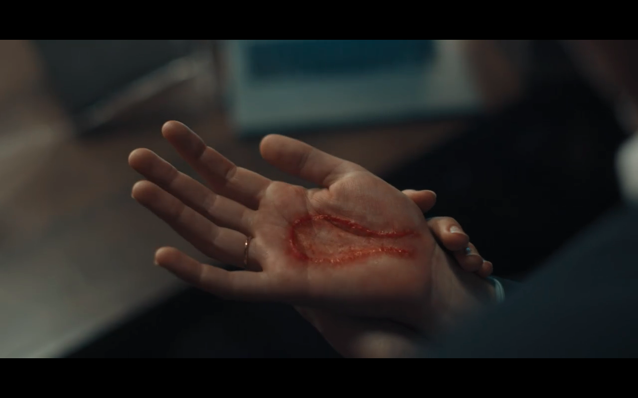 Disc of Witches S1Ep1 Diana's Burned Hand